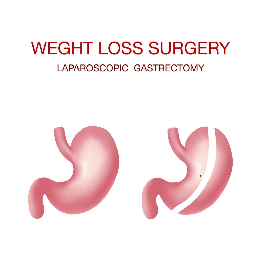 Gastric Sleeve - Foothills Weight Loss Surgeons
